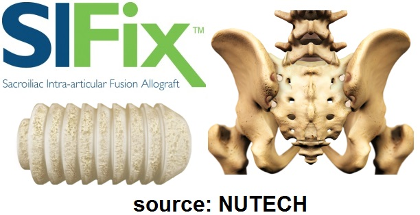 NUTECH SIFIX TRADEMARK SACROILIAC JOINT INTRA-ARTICULAR FUSION ALLOGRAFT